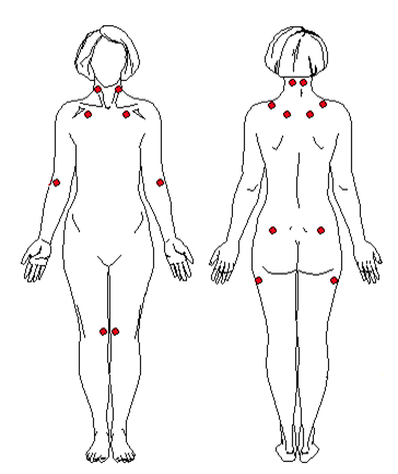 fibromyalgia pain points