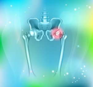 hip pain, abstract blue background. Hip arthritis